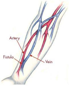 fistula-diagram